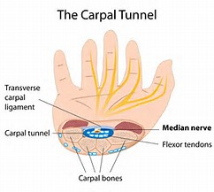 Acupuncture for Carpel Tunnel Syndrome